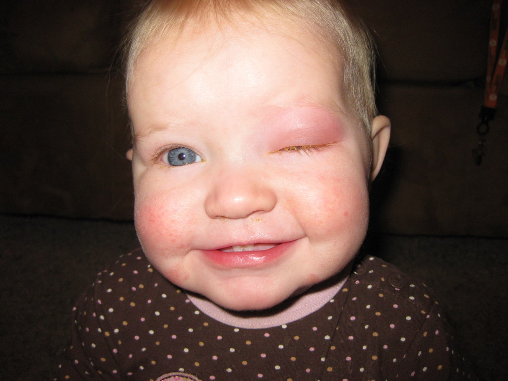 Pink Eye In Toddlers For Pinterest